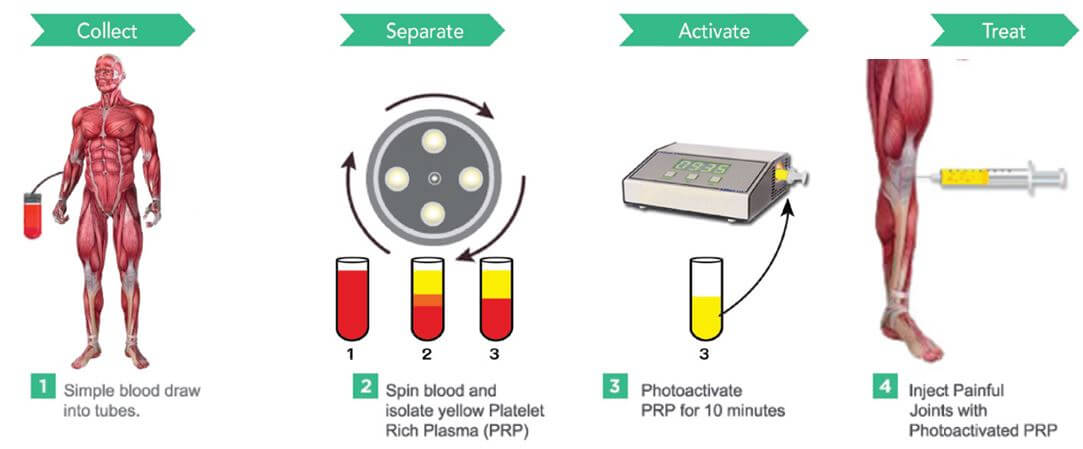 Giving you your own blood – the basics of platelet – rich plasma (PRP) treatment