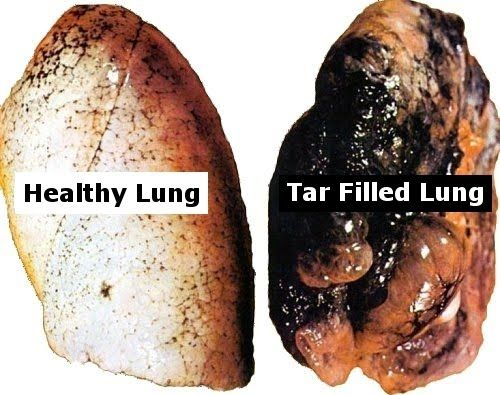 Lung health and marijuana